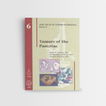 Afip-6-Tumors-of-the-Pancreas