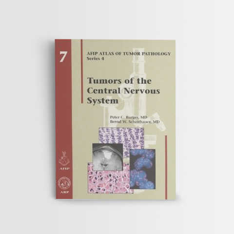 Afip-7-Tumors-of-the-Central-Nervous-System
