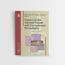 Afip-8-Tumors-of-the-Adrenal-Gland-and-Extra-adrenal-Paraganglia