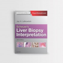 SCHEUER'S LIVER BIOPSY INTERPRETATION, 9TH EDITION