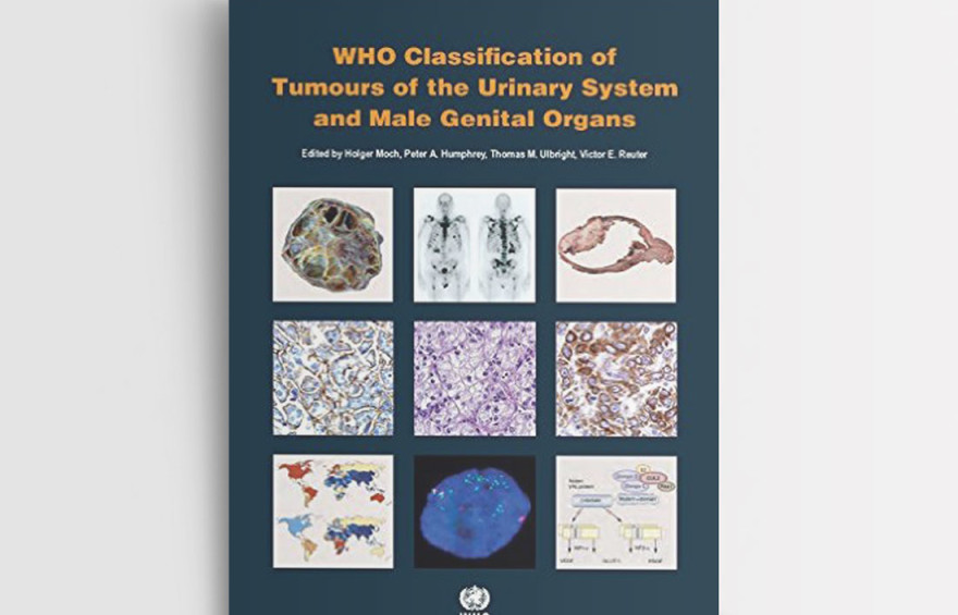 WHO CLASSIFICATION OF TUMOURS OF THE URINARY SYSTEM AND MALE GENITAL ORGANS 4 ED