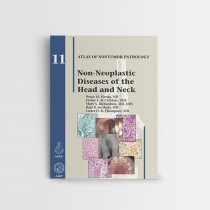 NON-NEOPLASTIC DISEASES OF THE HEAD AND NECK