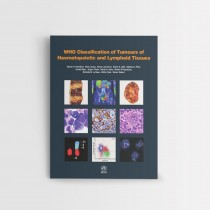 WHO Classification of Tumours of Haematopoietic and Lymphoid Tissues revised 4th edition