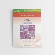Differential Diagnoses in Surgical Pathology Breast