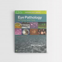 Eye Pathology