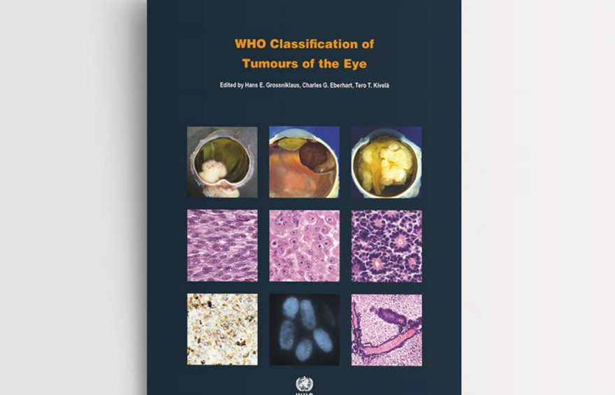 WHO CLASSIFICATION OF TUMOURS OF THE EYE. FOURTH EDITION