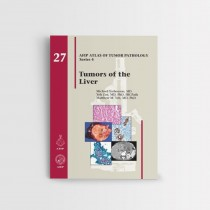 AFIP 27 TUMORS OF THE LIVER