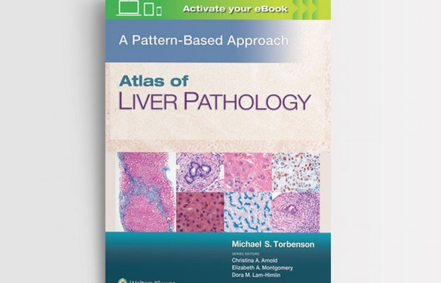 ATLAS-OF-LIVER-PATHOLOGY--A-PATTERN-BASED-APPROACH-FIRST-EDITION