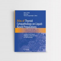 Atlas of Thyroid Cytopathology on Liquid-Based Preparations