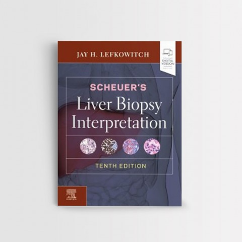 SCHEUER'S LIVER BIOPSY INTERPRETATION, 10TH EDITION