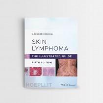 Skin Lymphoma