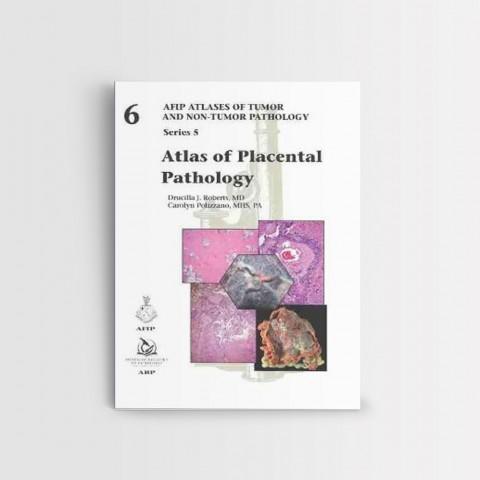 Atlas of Placental Pathology