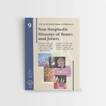 AFIP-9-NON-NEOPLASTIC-DISORDERS-OF-THE-BONES-AND-JOINTS