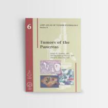 Afip-6-Tumors-of-the-Pancreas