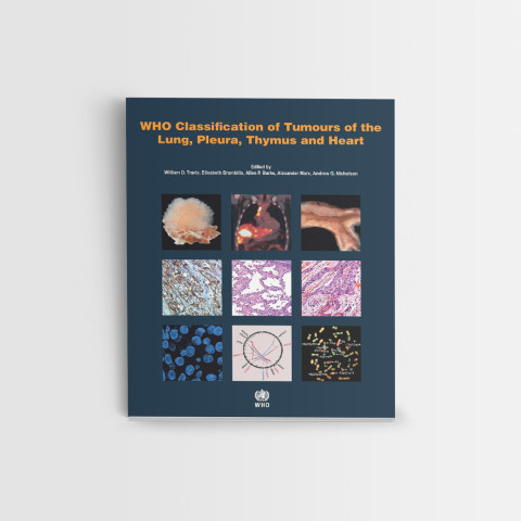 WHO Classification of Tumours of the Lung, Pleura, Thymus and Heart. Fourth edition