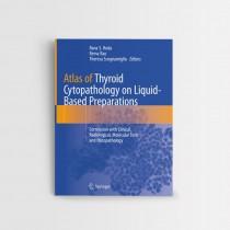 Atlas of Thyroid Cytopathology on Liquid-Based Preparations