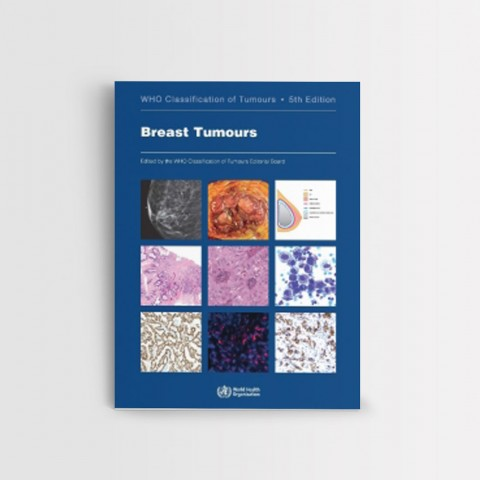 WHO Classification of Tumours, 5th Edition, Volume 2