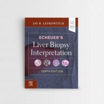 SCHEUER'S LIVER BIOPSY INTERPRETATION, 10TH EDITION
