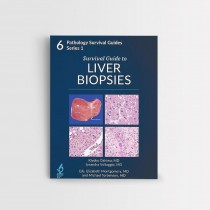 SURVIVAL GUIDE TO LIVER BIOPSIES VOL 6